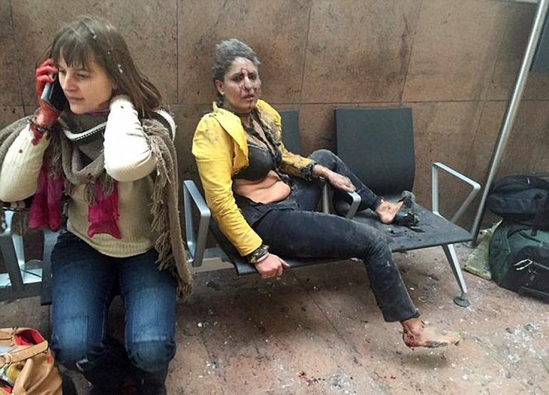 Belçika terrorunda yaddaşlarda qalan -  Üzü qanlı qadın + Foto